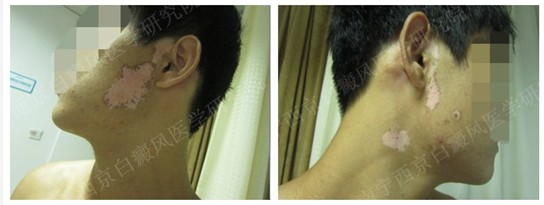 面部2年白斑成功门诊案例(男,28岁)