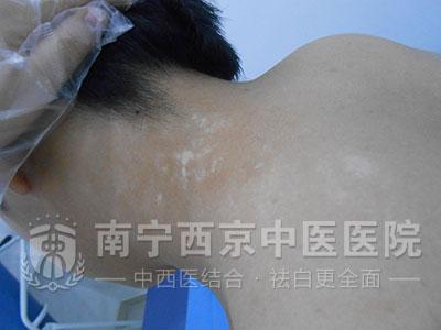 生活无规律引发的白癜风,在南宁西京治疗8周后康复